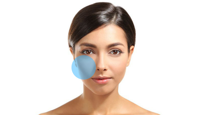 Enhancing facial beauty through Cheek Augmentation.