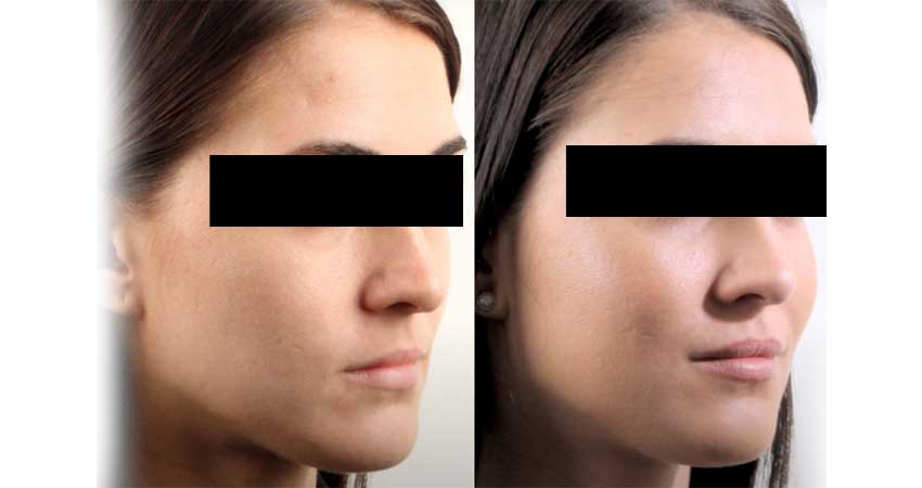 cheek augmentation- before after case by Dr Bhargava