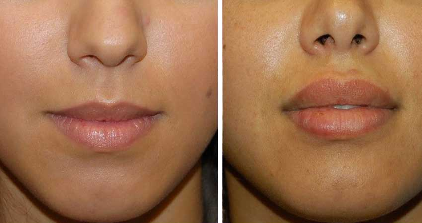 lip surgery-before after case