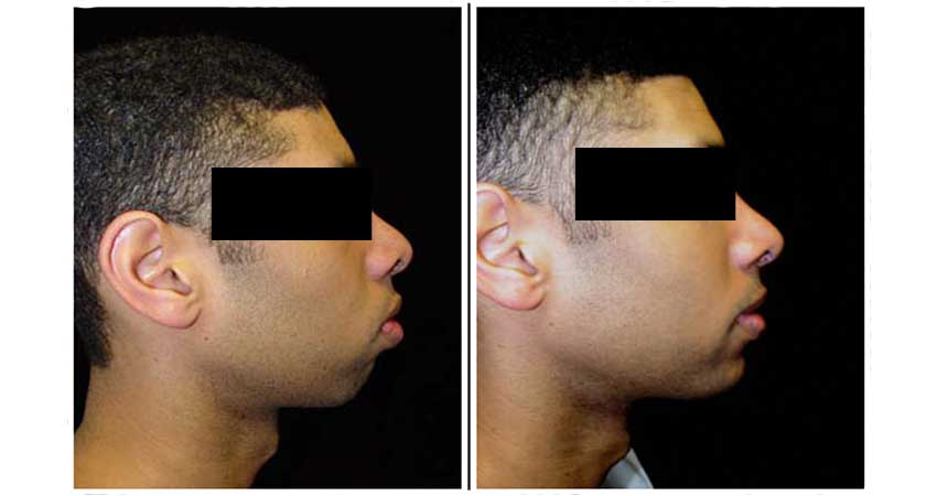 outward chin correction surgery by Dr Bhargava