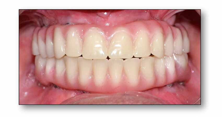 Fixed dentures/ all on 4 dental implants by Dr Bhargava