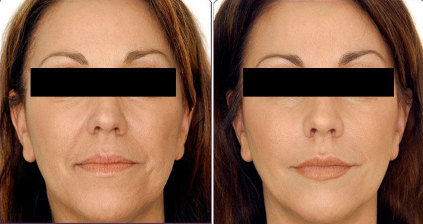 Facelift of botox surgery- real case by Dr Anurag Bhargava