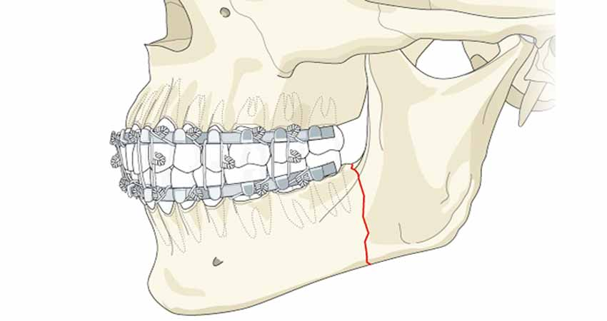 Jaw fractures case