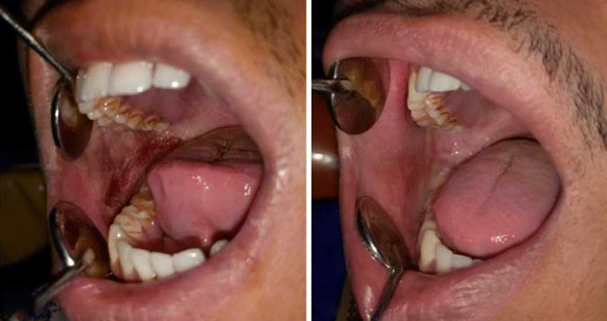 Human mouth- case of OSMF