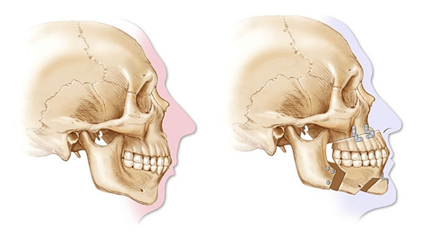 Diagrammatic representation of before and after Orthognathic surgery.