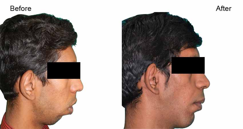 Jaw surgery or jaw correction surgery- before after