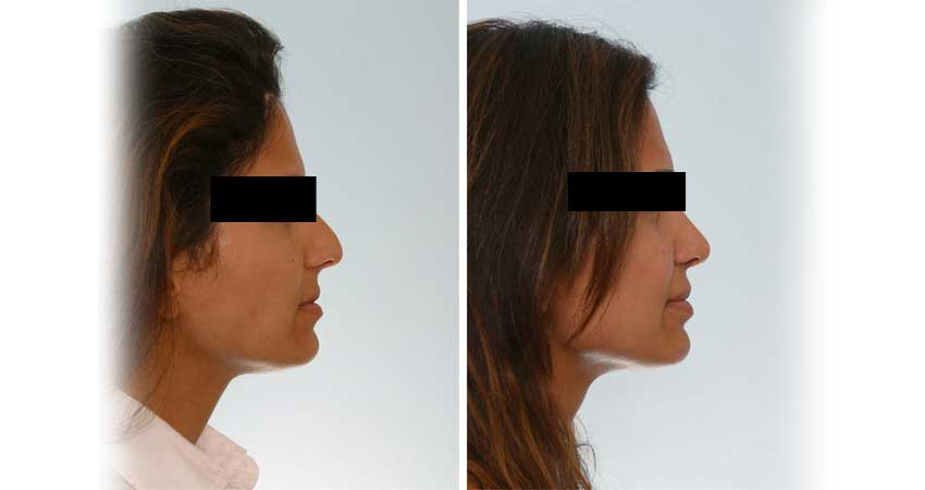 Nose surgery/ nose job- real case before after by Dr Bhargava