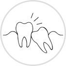 Surgical tooth extraction of third molar/ wisdom tooth