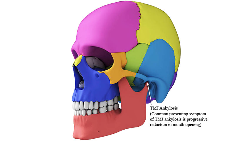 Graphical representation of common symptom of TMJ Ankylosis.