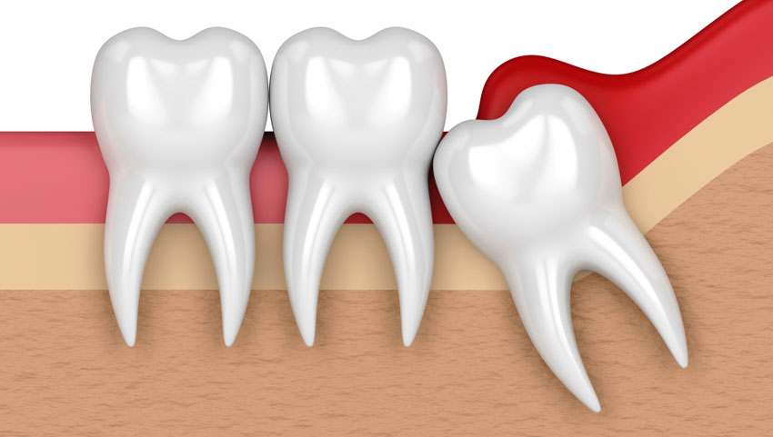 Painless wisdom tooth extraction at affordable prices.