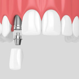 close up of dental implant- abudment and crown