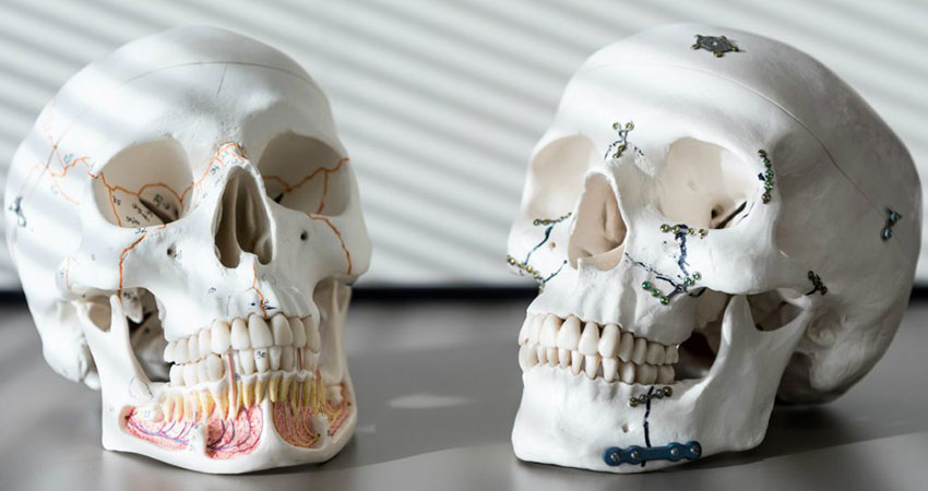 Jaw fractures and its treatment plan