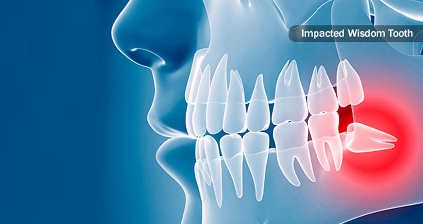 impacted wisdom tooth- wisdom teeth removal