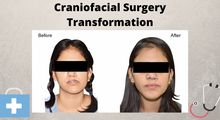 Craniofacial Surgery - A Look into Benefits & Techniques