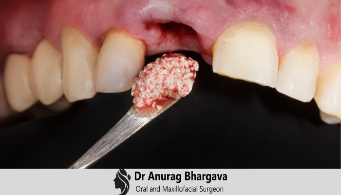 Bone Graft - Understanding the Process & Types