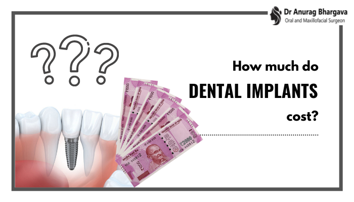 Cost of Dental Implants in India and Factors Affecting It