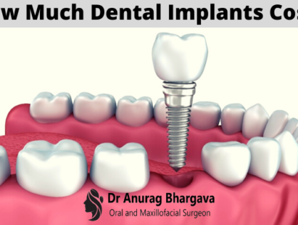 Dental Implants Cost in India   and Factors Affecting It