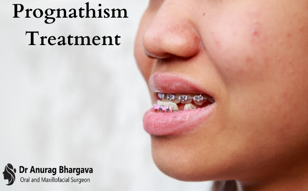 Prognathism - Different Conditions, Treatment & Precautions