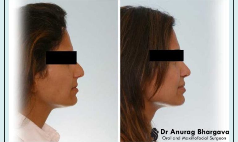 Cost of Rhinoplasty in India - It is Cheaper than you Think!