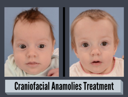 Craniofacial Anomalies - Symptoms, Diagnosis & Treatment