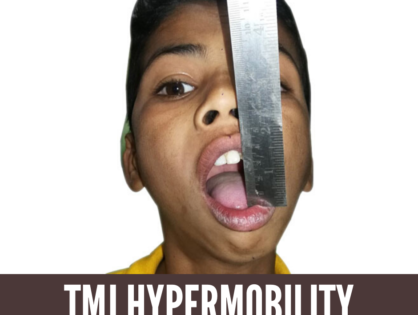 You Could Be Suffering From TMJ Hypermobility! Know Its Causes & Characteristics