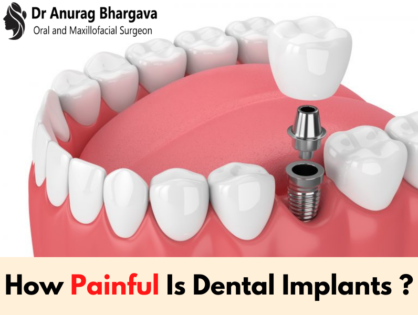 How painful is dental implants procedure? Know from the top dental surgeon