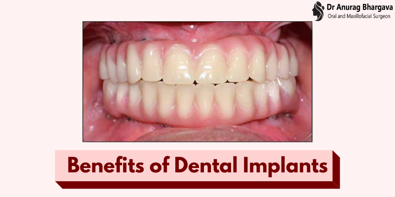 8 Benefits of Dental Implants That You Didn't Know Before