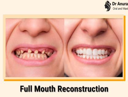 Full Mouth Reconstruction - Need, Processes Involved & Procedural Steps