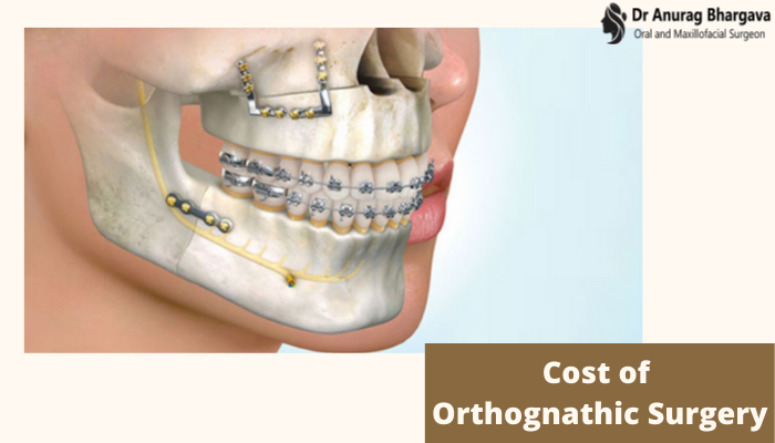 Cost of Orthognathic Surgery in India - The Exact Details by Jaw Surgeon
