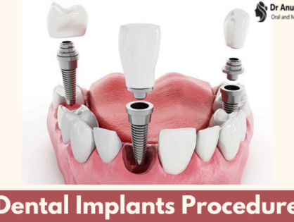 Dental Implants Procedure - Get Answer To Every Query Related To It