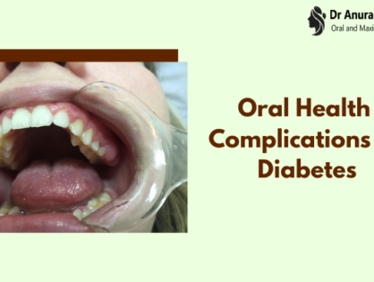 Oral Health Complications Of Diabetes That You Must Know