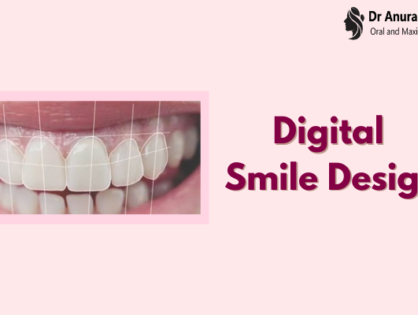 Digital Smile Design - The Complete Procedure by Top Dental Surgeon