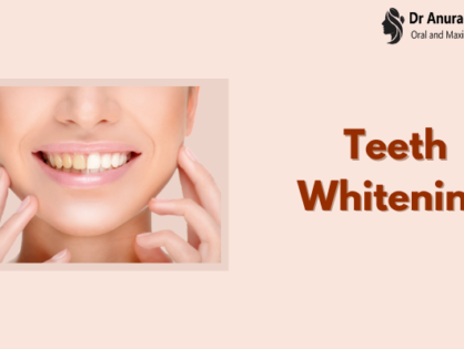 Teeth Whitening Cost - Procedure, Risks and Options