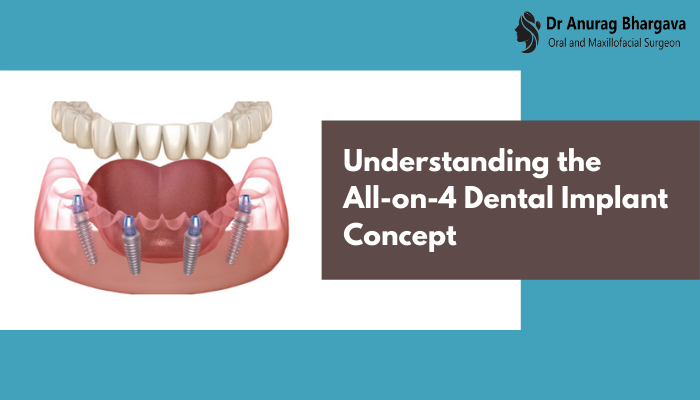 Understanding the All-on-4 Dental Implant Concept
