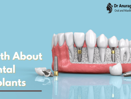 The Truth about Dental Implants: The What & the How?