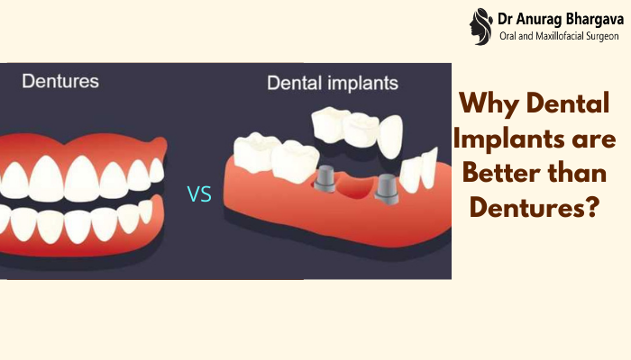 Why Dental Implants are Better than Dentures ?