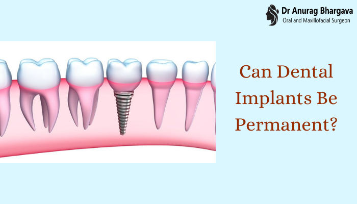 Can Dental Implants Be Permanent?