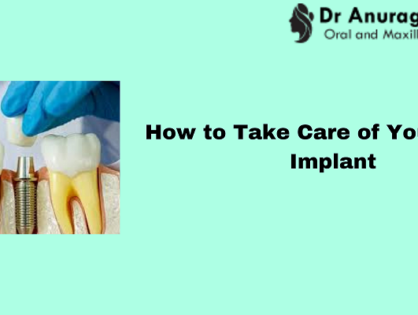 How to Take Care of Your Dental Implant ?