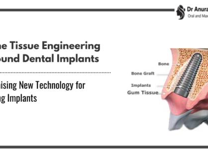 Bone Tissue Engineering Around Dental Implants   Promising New Technology for Failing Implants