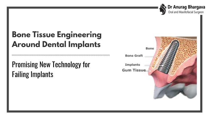 Bone Tissue Engineering Around Dental Implants | Promising New Technology for Failing Implants